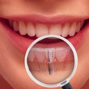 No Better Choice Than Dental Implants!