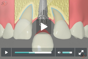 Implant Restoration - Option 2