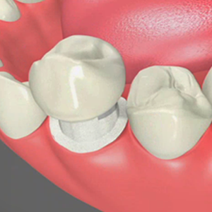 Dental Crowns El Paso Texas