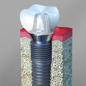 Dental Implants El Paso Texas